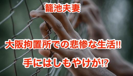 【籠池夫妻】大阪拘置所での悲惨な生活‼︎手にはしもやけが⁉︎